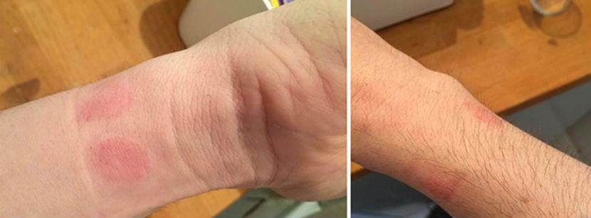 apple watch irritacion cutanea