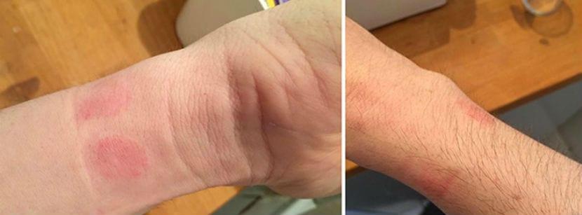 apple watch irritacion cutanea